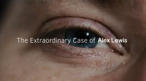 The Extraordinary Case Of Alex Lewis