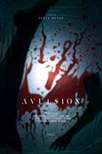 Avulsion